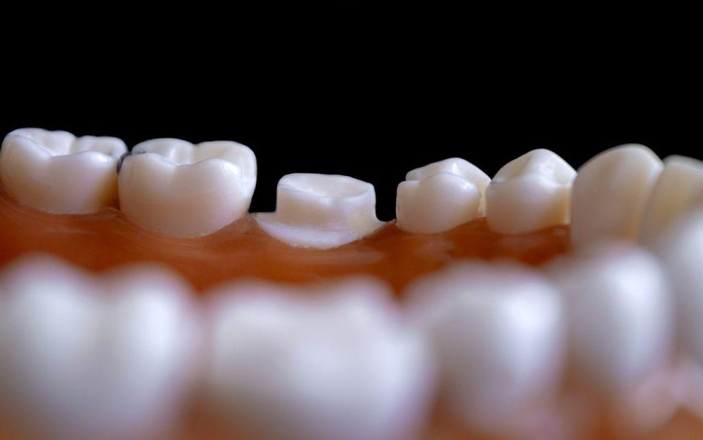 Dentiste à Bordeaux